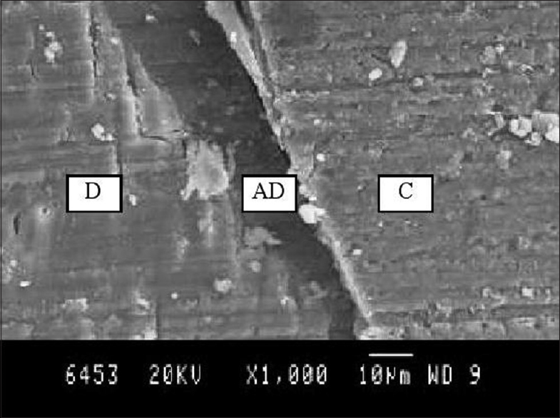 Figure 1: Scanning electron microscopy diagram of Group 1 showing excellent adaptation between dentin and composite