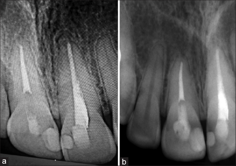 Figure 2: (a) Preoperative periapical X-ray, (b) postoperative periapical X-ray after 1 year
