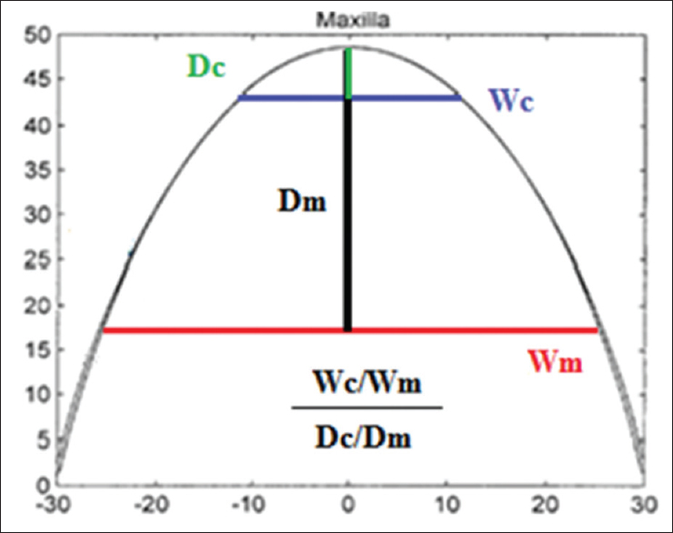 Figure 3: The calculated arch form dimension was used to interpret the shape of arch form by using a mathematical formula (CD/MD)/(CW/MW).<sup>[17]</sup> CD: Canine depth, MD: Molar depth, CW: Canine Width, and MW: Molar Width. When the Wc/Wm ratio increases of the Dc/Dm ratio decreases, the arch becomes squarer. On the contrary, when Wc/Wm ratio decreases or Dc/Dm ratio increases, the arch gets a more tapered form. Therefore, the formula is used to describe the arch form